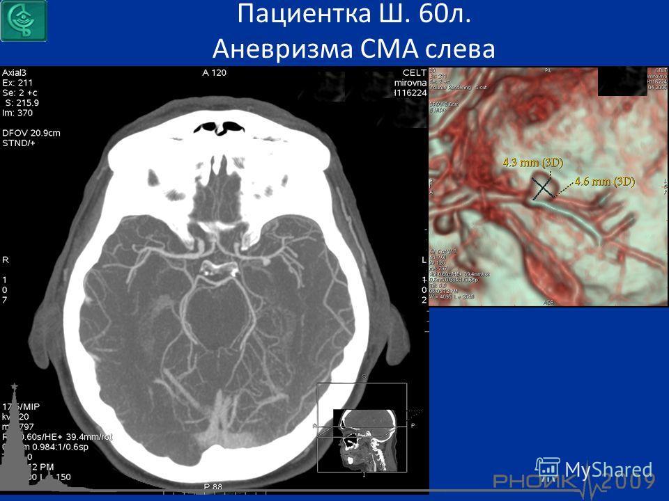 Пациентка Ш. 60л. Аневризма СМА слева
