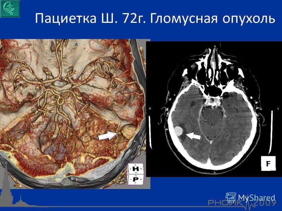 Пациетка Ш. 72г. Гломусная опухоль