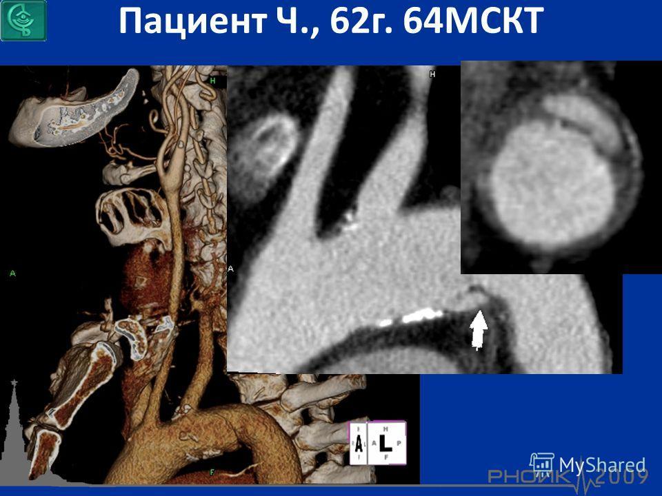 Пациент Ч., 62г. 64МСКТ