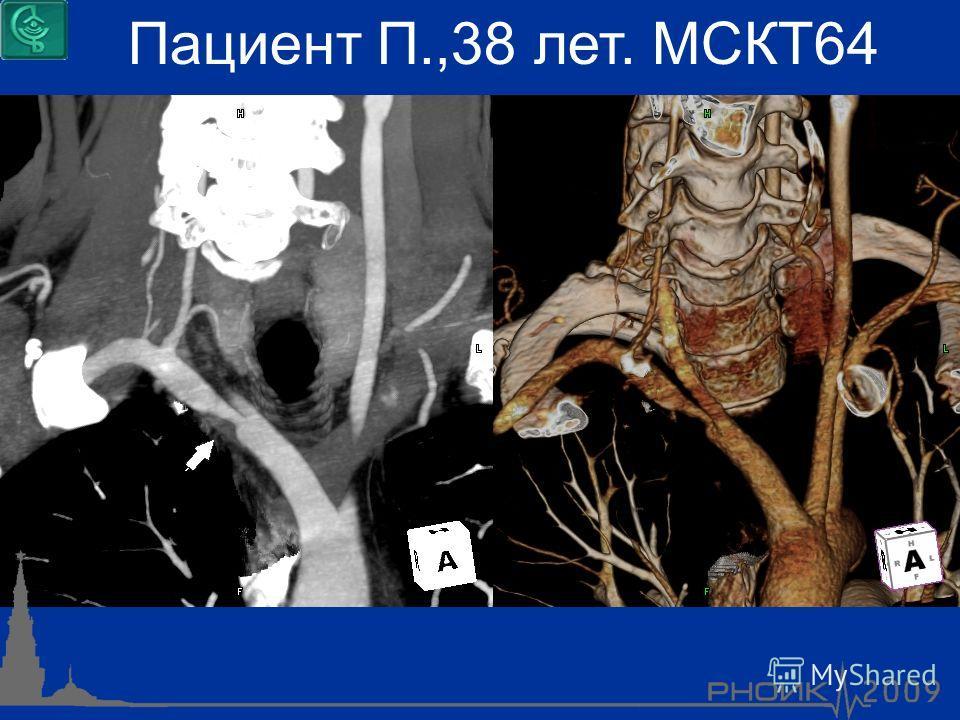 Пациент П.,38 лет. МСКТ64