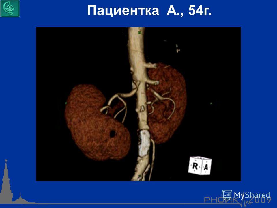 Пациентка А., 54г.