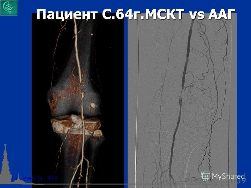 Пациент Д., 67л. Пациент С.64г.МСКТ vs AAГ