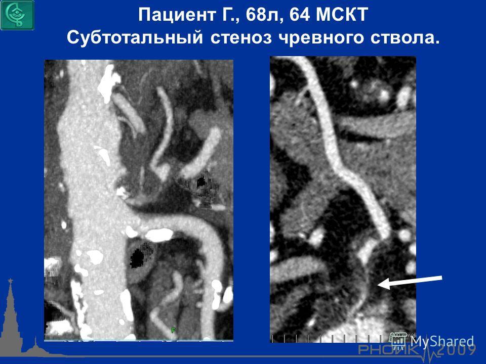 Пациент Г., 68л, 64 МСКТ Субтотальный стеноз чревного ствола.