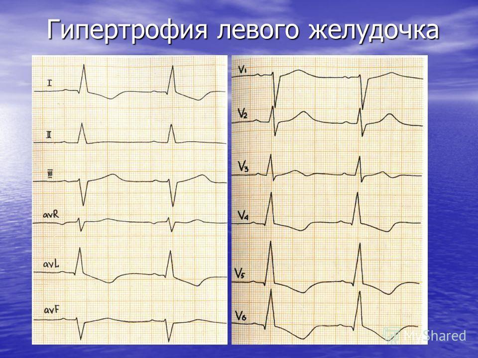 Гипертрофия левого желудочка