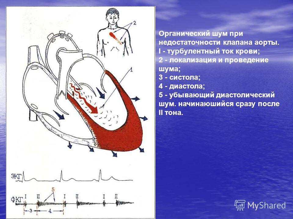 Органический шум при недостаточности клапана аорты. I - турбулентный ток крови; 2 - локализация и проведение шума; 3 - систола; 4 - диастола; 5 - убывающий диастолический шум. начинаюшийся сразу после II тона.