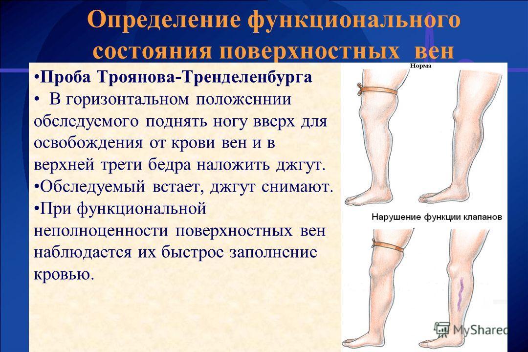 Определение функционального состояния поверхностных вен Проба Троянова-Тренделенбурга В горизонтальном положеннии обследуемого поднять ногу вверх для освобождения от крови вен и в верхней трети бедра наложить джгут. Обследуемый встает, джгут снимают.