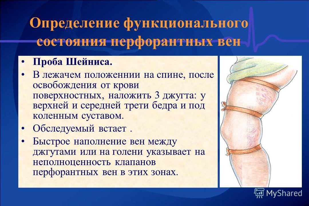 Проба Шейниса. В лежачем положеннии на спине, после освобождения от крови поверхностных, наложить 3 джугта: у верхней и середней трети бедра и под коленным суставом. Обследуемый встает. Быстрое наполнение вен между джгутами или на голени указывает на