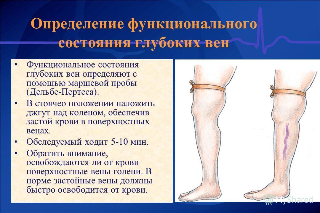 Функциональное состояния глубоких вен определяют с помощью маршевой пробы (Дельбе-Пертеса). В стоячео положении наложить джгут над коленом, обеспечив застой крови в поверхностных венах. Обследуемый ходит 5-10 мин. Обратить внимание, освобождаются ли