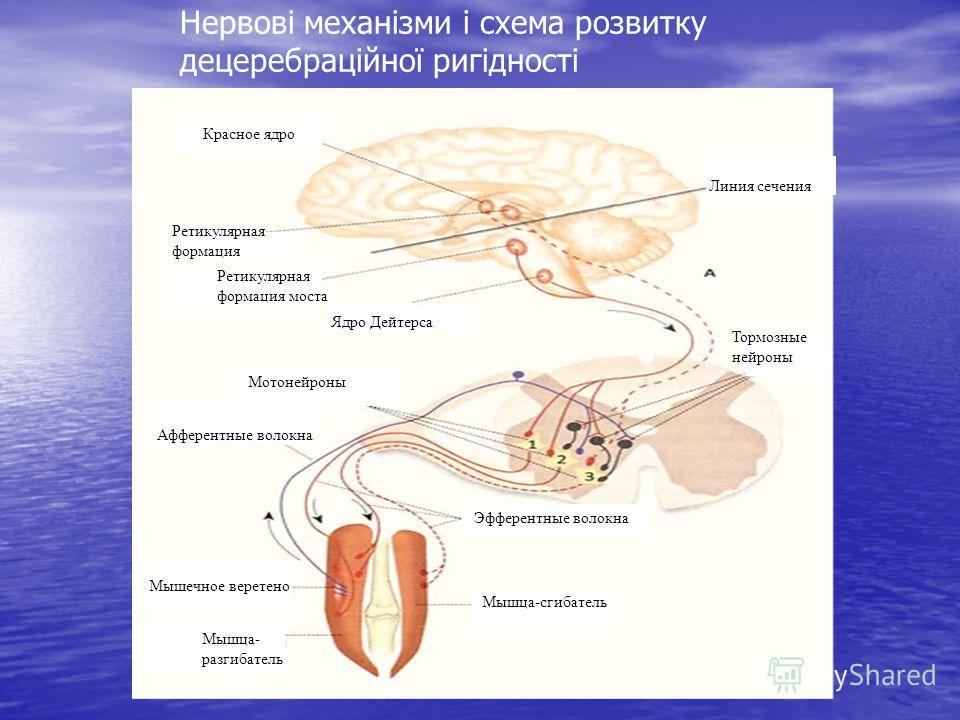 Нервові механізми і схема розвитку децеребраційної ригідності Красное ядро Линия сечения Тормозные нейроны Мышца-сгибатель Эфферентные волокна Мышца- разгибатель мышечное веретено Мышечное веретено Афферентные волокна Мотонейроны Ядро Дейтерса Ретику