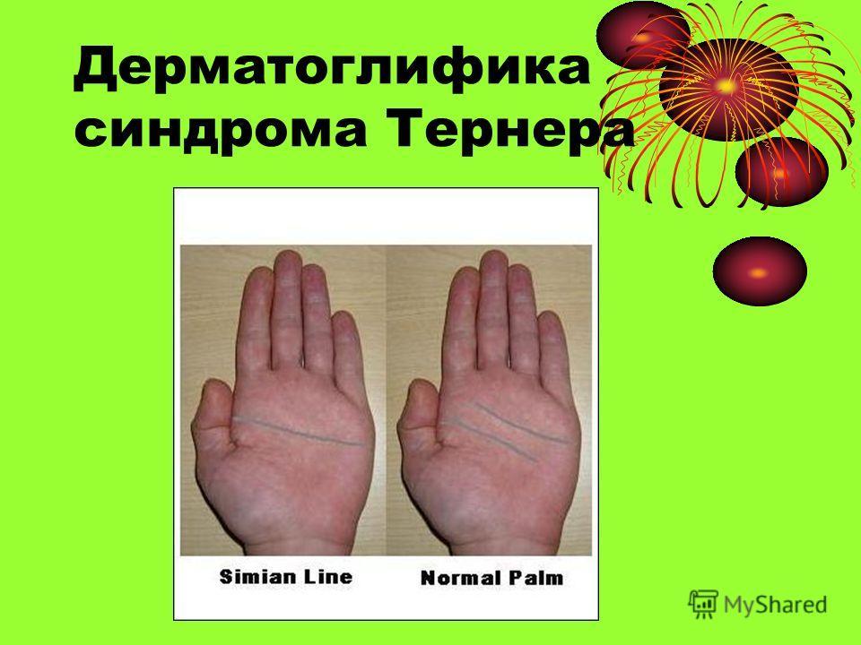 Дерматоглифика синдрома Тернера