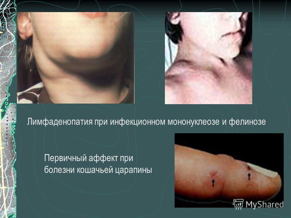 Лимфаденопатия при инфекционном мононуклеозе и фелинозе Первичный аффект при болезни кошачьей царапины