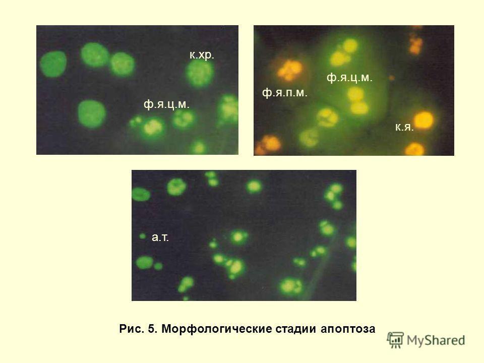 Рис. 5. Морфологические стадии апоптоза к.хр. ф.я.ц.м. ф.я.п.м. а.т. к.я.