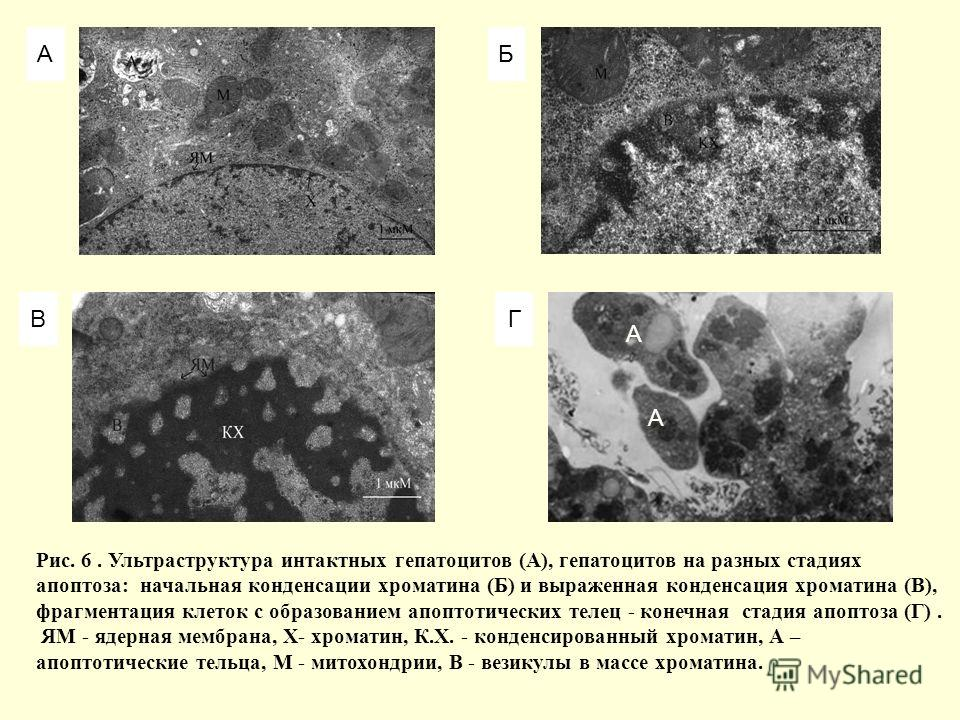 АБ ВГ Рис. 6. Ультраструктура интактных гепатоцитов (А), гепатоцитов на разных стадиях апоптоза: начальная конденсации хроматина (Б) и выраженная конденсация хроматина (В), фрагментация клеток с образованием апоптотических телец - конечная стадия апо