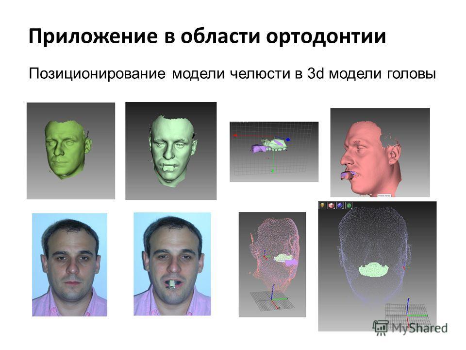 Приложение в области ортодонтии Позиционирование модели челюсти в 3d модели головы