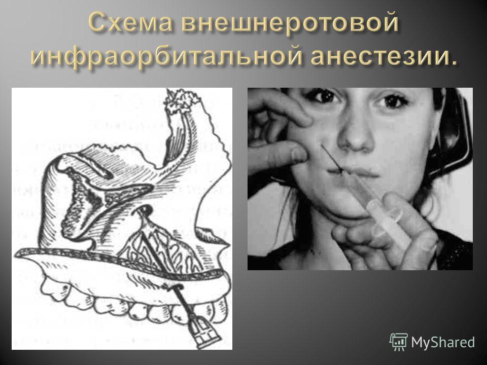 реакция на обезболивание при лечении зубов