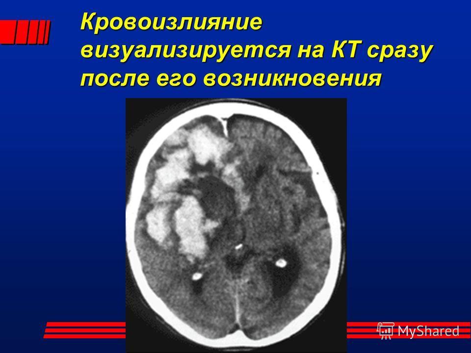Кровоизлияние визуализируется на КТ сразу после его возникновения