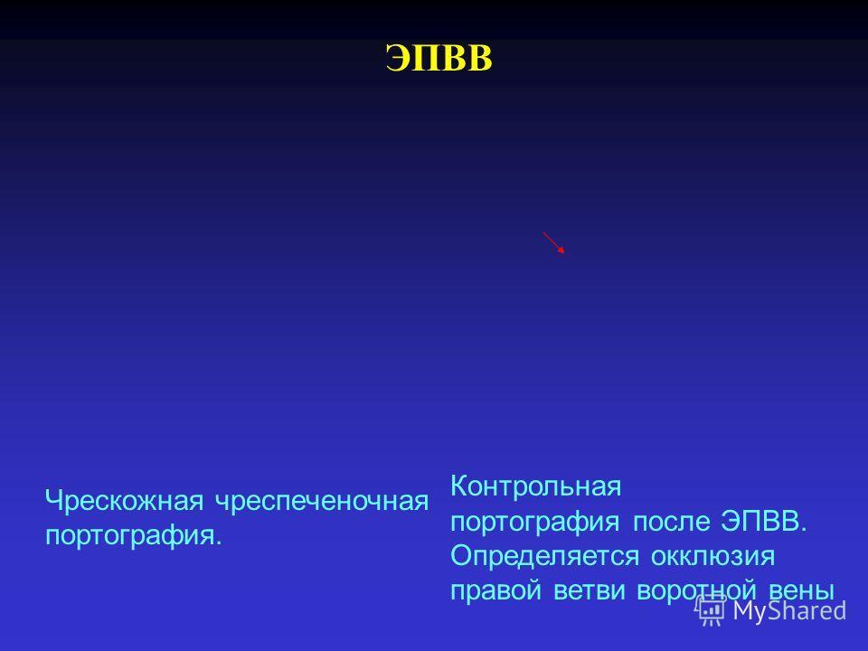 ЭПВВ Чрескожная чреспеченочная портография. Контрольная портография после ЭПВВ. Определяется окклюзия правой ветви воротной вены