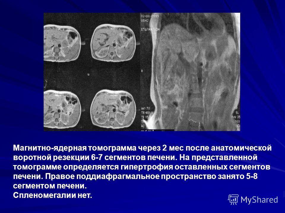 Магнитно-ядерная томограмма через 2 мес после анатомической воротной резекции 6-7 сегментов печени. На представленной томограмме определяется гипертрофия оставленных сегментов печени. Правое поддиафрагмальное пространство занято 5-8 сегментом печени.