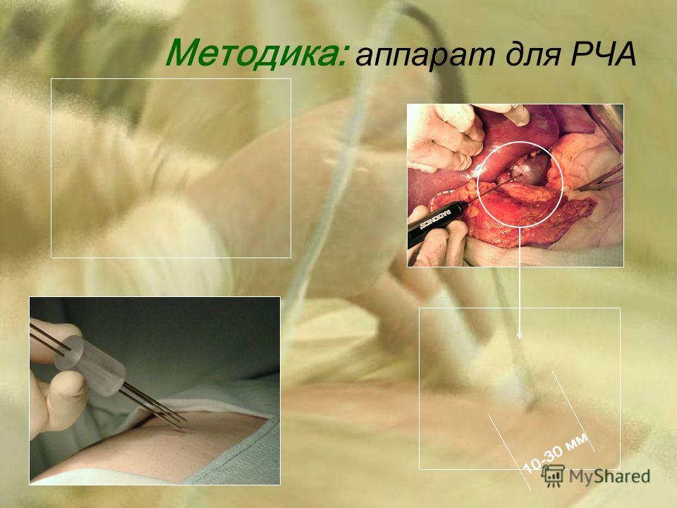Методика: аппарат для РЧА