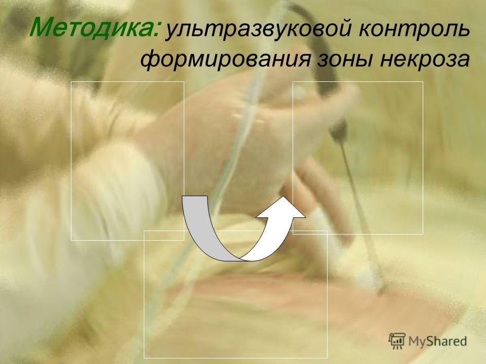 Методика: ультразвуковой контроль формирования зоны некроза