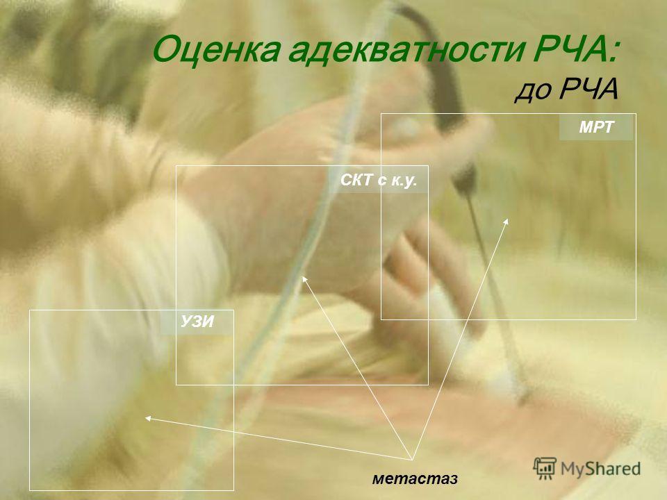 Оценка адекватности РЧА: до РЧА метастаз УЗИ СКТ с к.у. МРТ