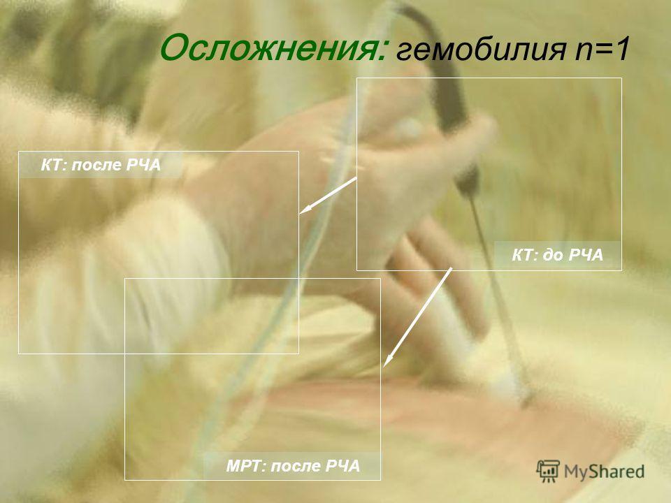 Осложнения: гемобилия n=1 КТ: до РЧА КТ: после РЧА МРТ: после РЧА