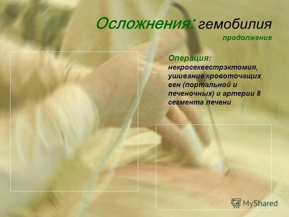Осложнения : гемобилия продолжение Операция: некросеквестрэктомия, ушивание кровоточащих вен (портальной и печеночных) и артерии 8 сегмента печени