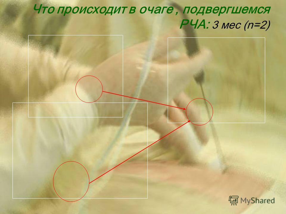 Что происходит в очаге, подвергшемся РЧА: 3 мес (n=2)