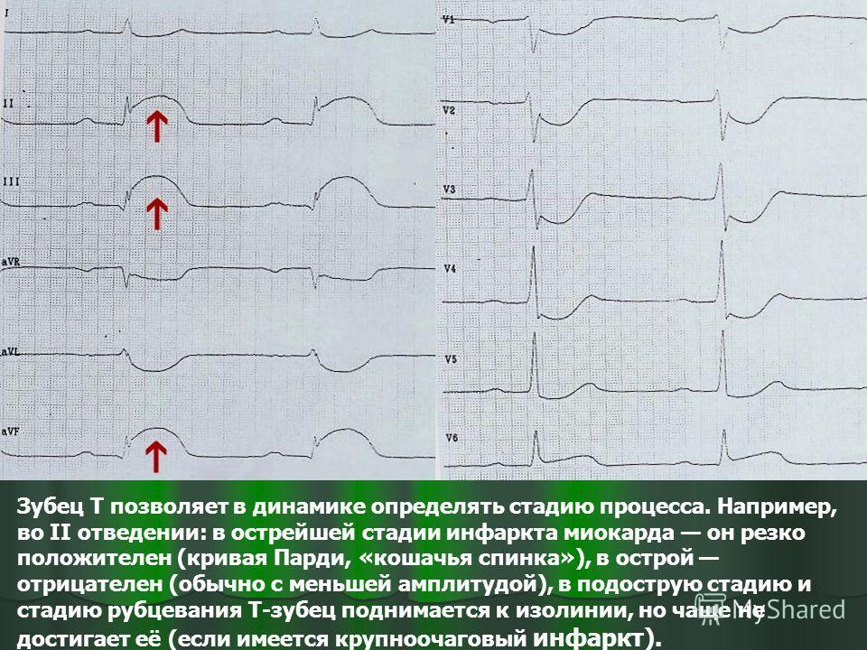 Зубец T позволяет в динамике определять стадию процесса. Например, во II отведении: в острейшей стадии инфаркта миокарда он резко положителен (кривая Парди, «кошачья спинка»), в острой отрицателен (обычно с меньшей амплитудой), в подострую стадию и с