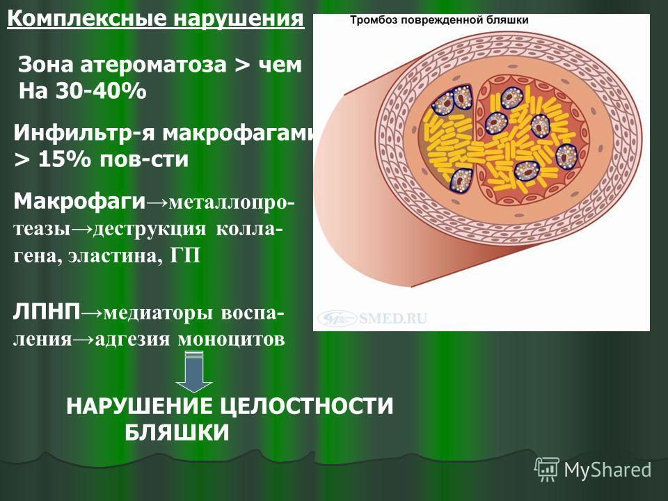Комплексные нарушения Зона атероматоза > чем На 30-40% Инфильтр-я макрофагами > 15% пов-сти Макрофаги металлопро- теазыдеструкция колла- гена, эластина, ГП ЛПНП медиаторы воспа- ленияадгезия моноцитов НАРУШЕНИЕ ЦЕЛОСТНОСТИ БЛЯШКИ