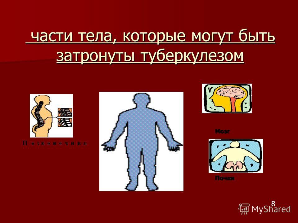 части тела, которые могут быть затронуты туберкулезом части тела, которые могут быть затронуты туберкулезом МозгПочки 8