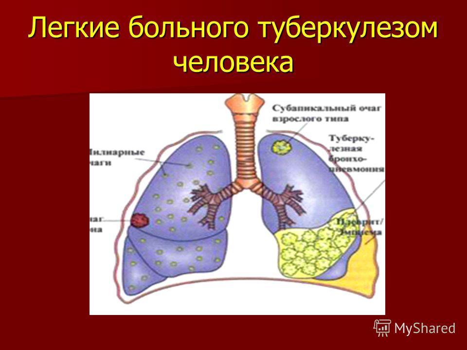 Легкие больного туберкулезом человека