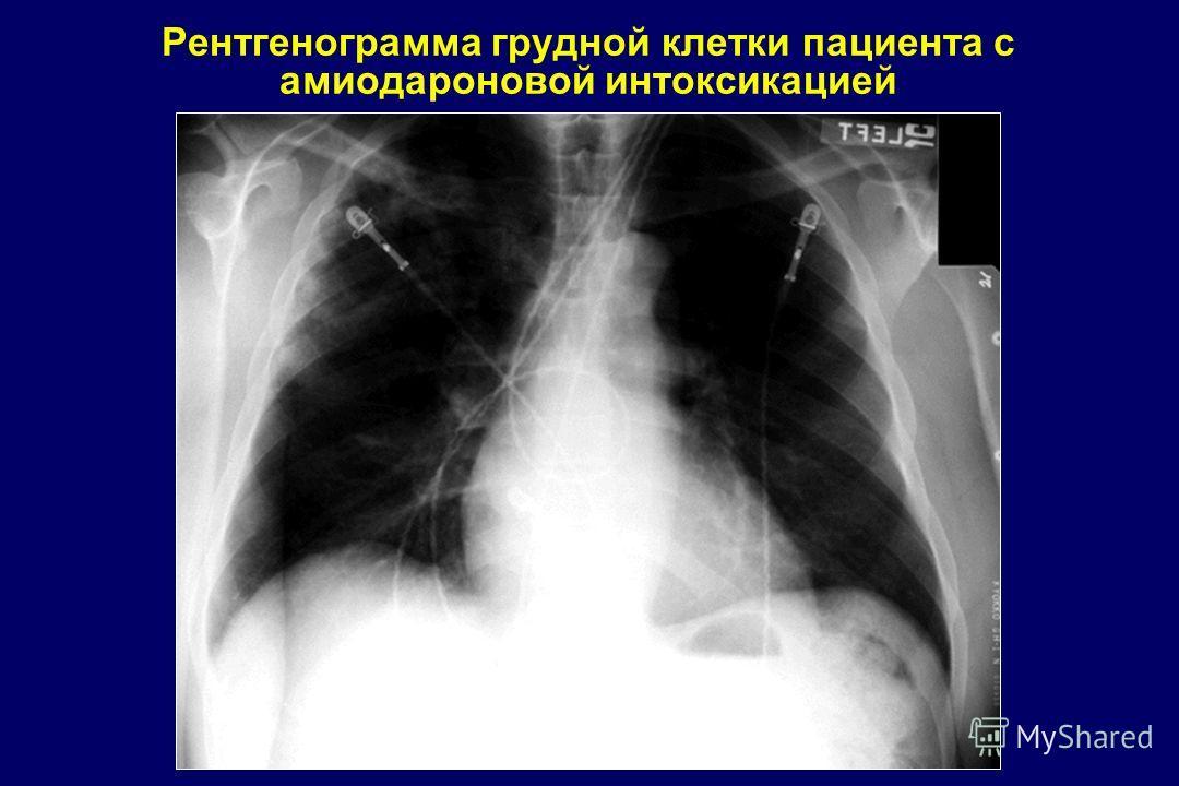 Рентгенограмма грудной клетки пациента с амиодароновой интоксикацией