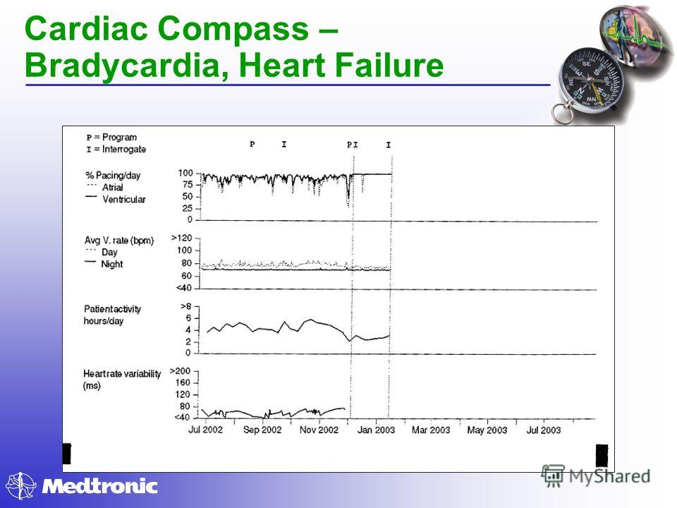 Cardiac Compass – Bradycardia, Heart Failure