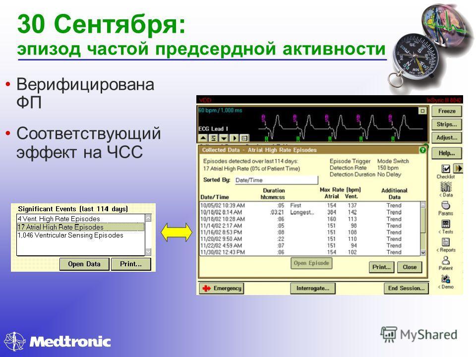 Верифицирована ФП Соответствующий эффект на ЧСС 30 Сентября: эпизод частой предсердной активности