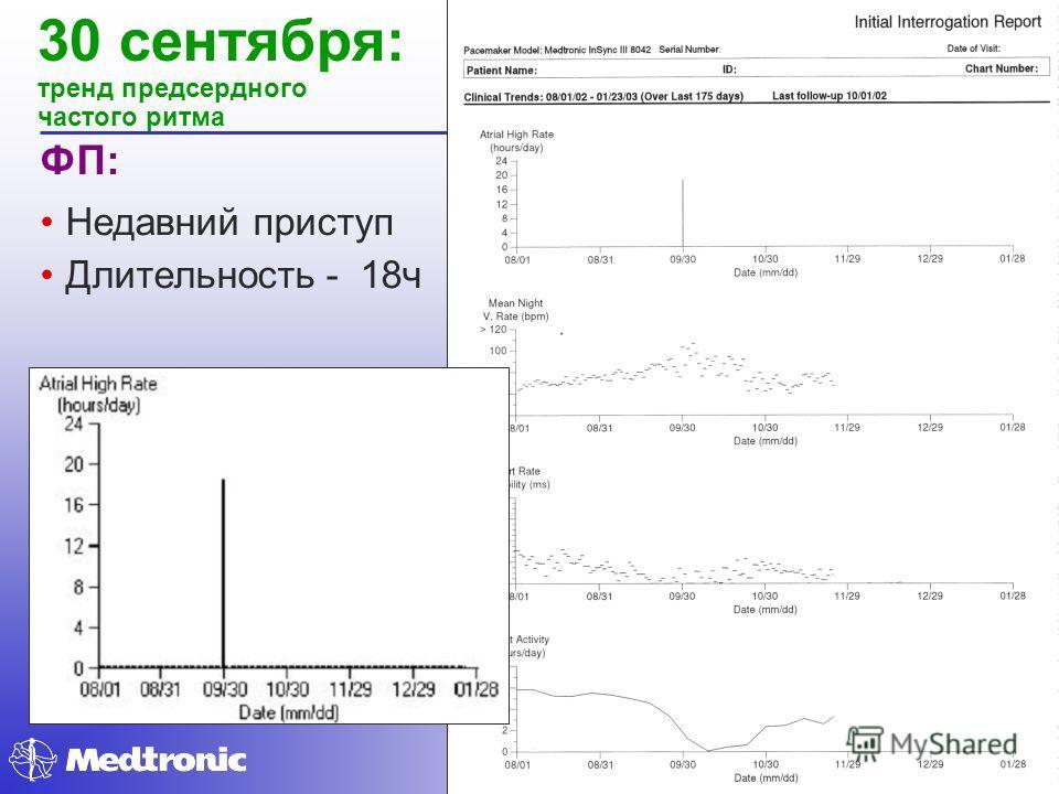 30 сентября: тренд предсердного частого ритма ФП: Недавний приступ Длительность - 18ч