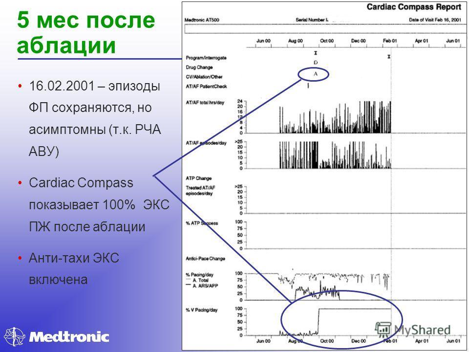 5 мес после аблации 16.02.2001 – эпизоды ФП сохраняются, но асимптомны (т.к. РЧА АВУ) Cardiac Compass показывает 100% ЭКС ПЖ после аблации Анти-тахи ЭКС включена