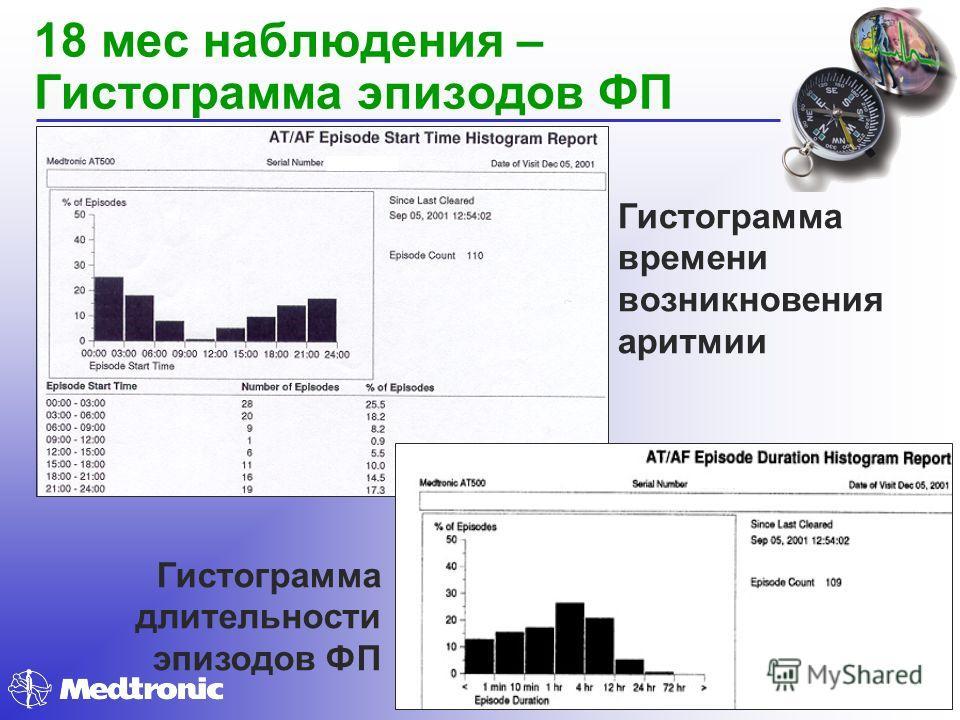 18 мес наблюдения – Гистограмма эпизодов ФП Гистограмма длительности эпизодов ФП Гистограмма времени возникновения аритмии