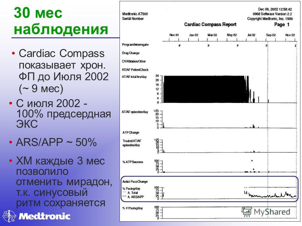 30 мес наблюдения Cardiac Compass показывает хрон. ФП до Июля 2002 (~ 9 мес) С июля 2002 - 100% предсердная ЭКС ARS/APP ~ 50% ХМ каждые 3 мес позволило отменить мирадон, т.к. синусовый ритм сохраняется