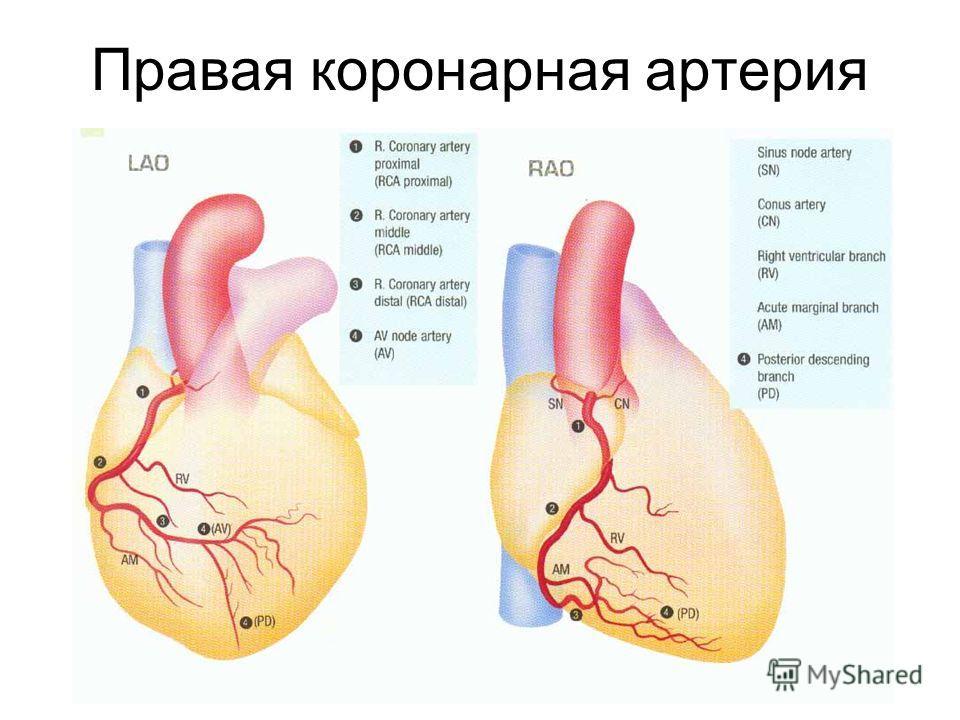 Правая коронарная артерия