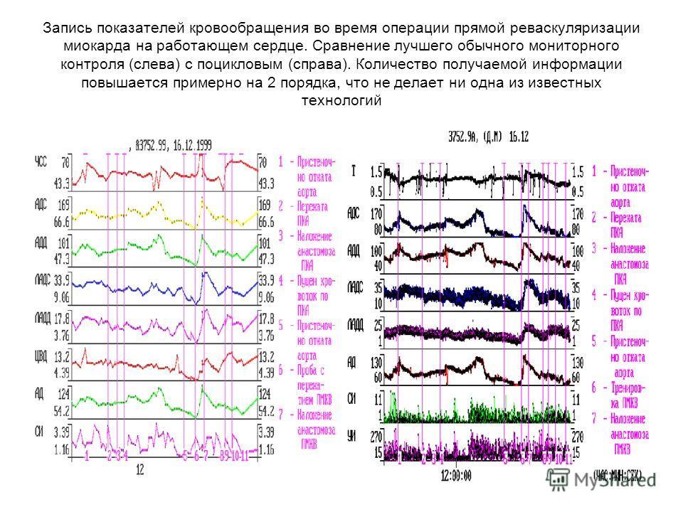 Запись показателей кровообращения во время операции прямой реваскуляризации миокарда на работающем сердце. Сравнение лучшего обычного мониторного контроля (слева) с поцикловым (справа). Количество получаемой информации повышается примерно на 2 порядк