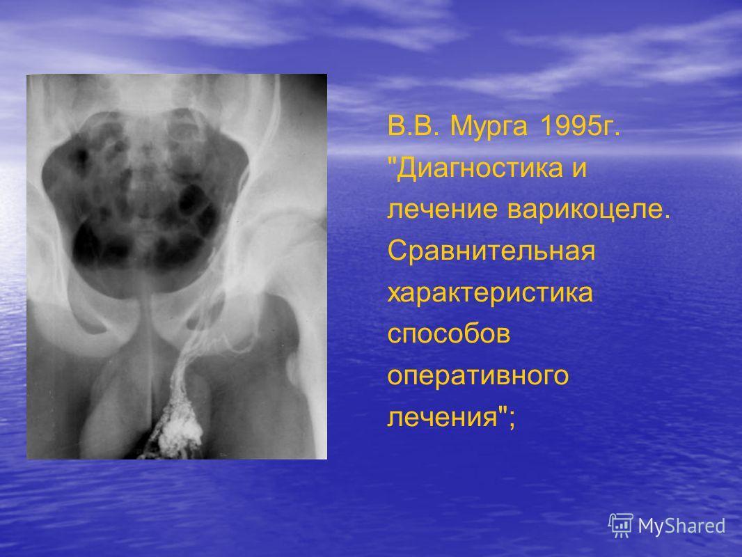 В.В. Мурга 1995г. Диагностика и лечение варикоцеле. Сравнительная характеристика способов оперативного лечения;