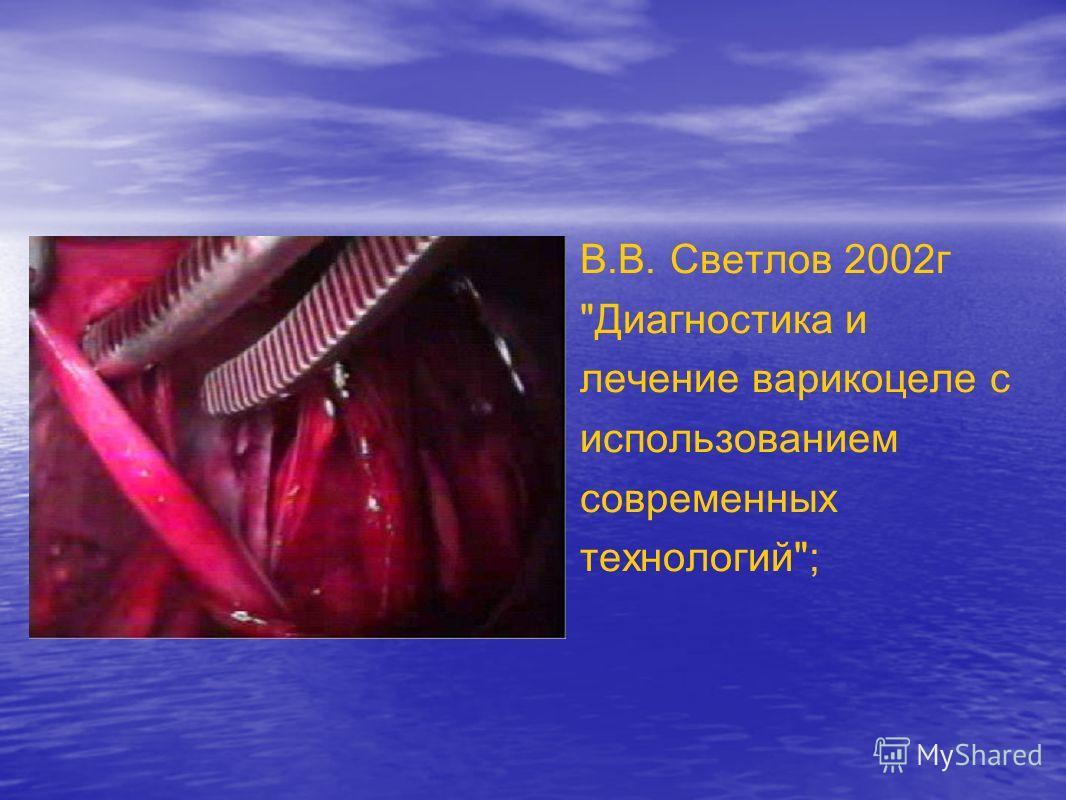 В.В. Светлов 2002г Диагностика и лечение варикоцеле с использованием современных технологий;