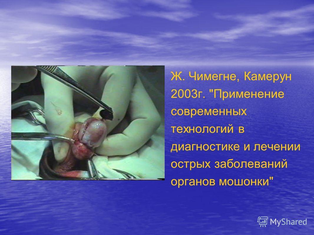 Ж. Чимегне, Камерун 2003г. Применение современных технологий в диагностике и лечении острых заболеваний органов мошонки