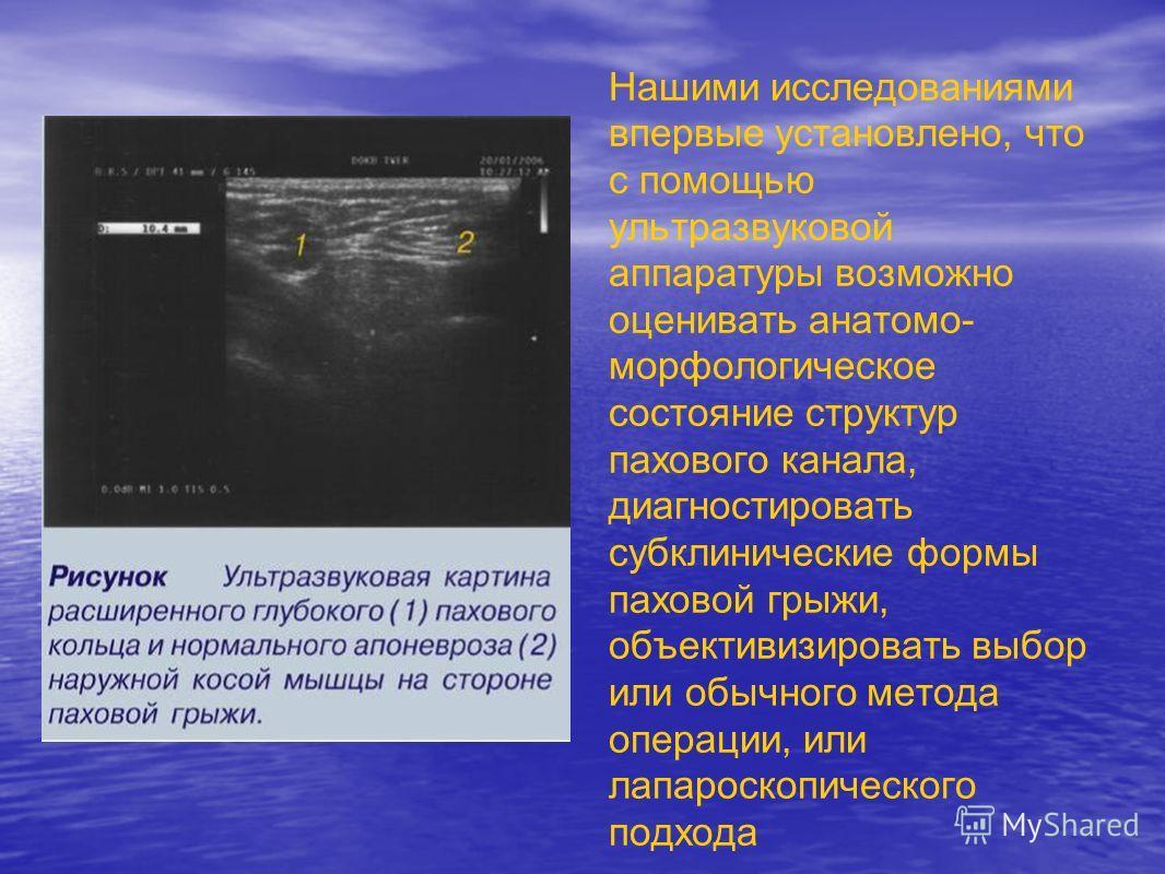 Нашими исследованиями впервые установлено, что с помощью ультразвуковой аппаратуры возможно оценивать анатомо- морфологическое состояние структур пахового канала, диагностировать субклинические формы паховой грыжи, объективизировать выбор или обычног