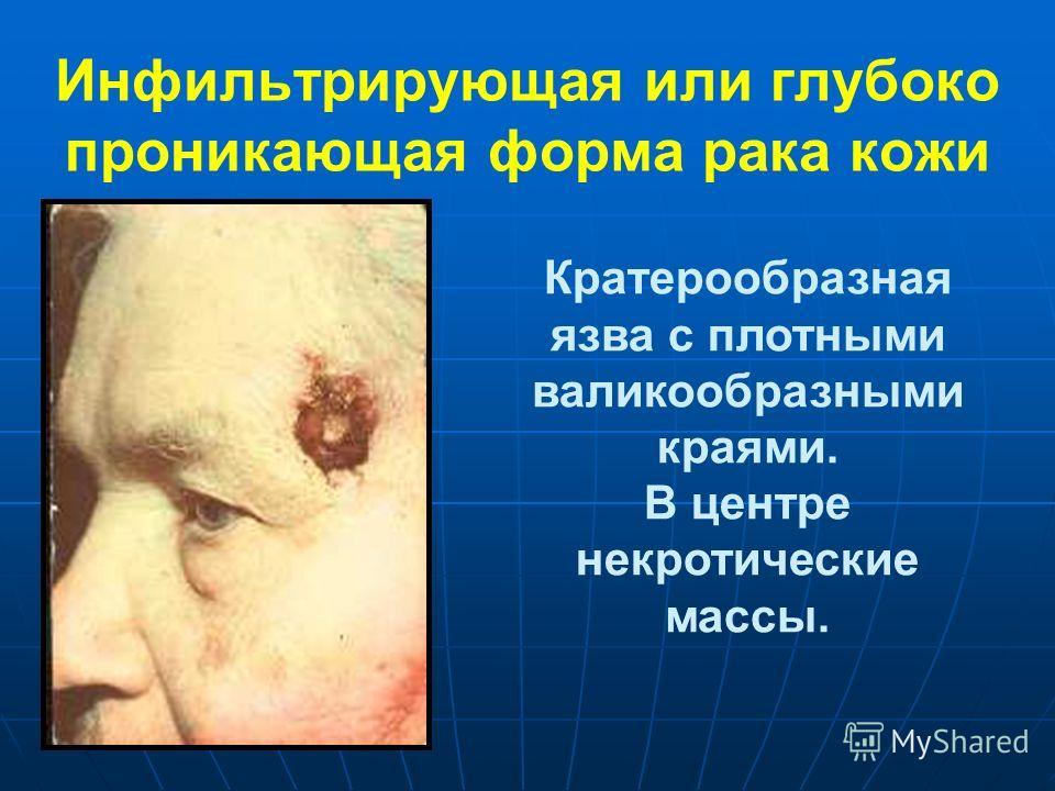 Инфильтрирующая или глубоко проникающая форма рака кожи Кратерообразная язва с плотными валикообразными краями. В центре некротические массы.