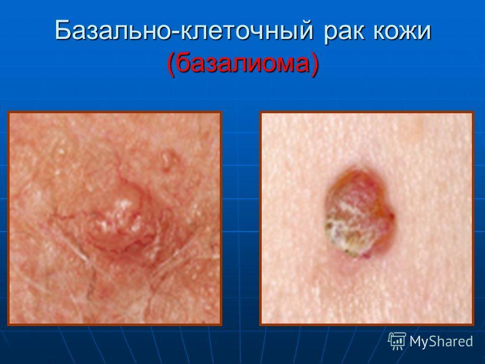 рак кожи фото симптомы лечение № 66893 загрузить
