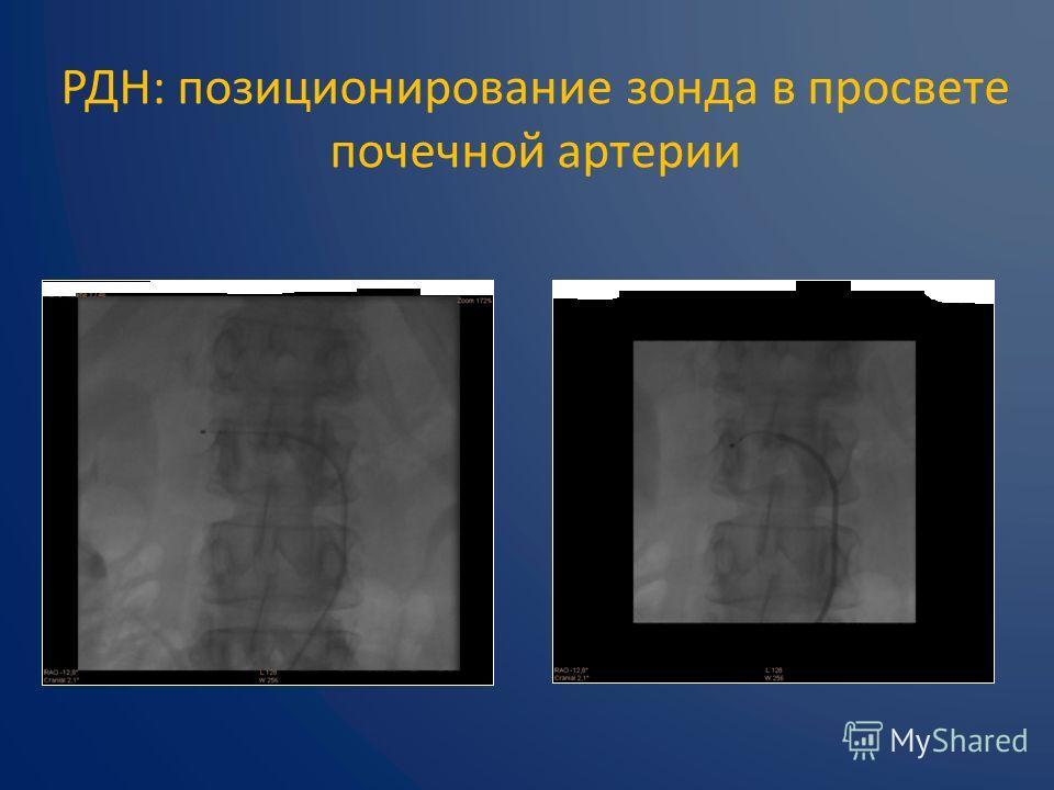 РДН: позиционирование зонда в просвете почечной артерии