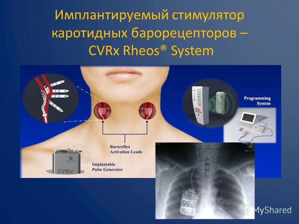 Имплантируемый стимулятор каротидных барорецепторов – CVRx Rheos® System