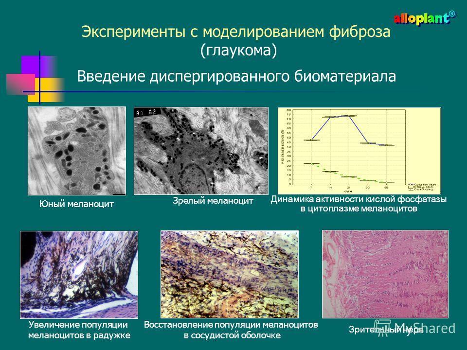 Эксперименты с моделированием фиброза (глаукома) Введение диспергированного биоматериала Динамика активности кислой фосфатазы в цитоплазме меланоцитов Восстановление популяции меланоцитов в сосудистой оболочке Юный меланоцит Зрелый меланоцит Зрительн